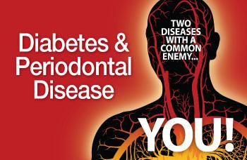 Diabetes and Periodontal Disease