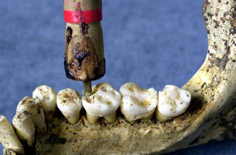 History and Development of Modern Dental Implants (1/6)