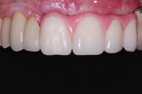 Intraoral view of temporary