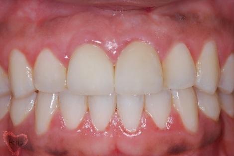 dental implant houston tx