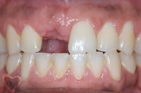 dental implant houston tx