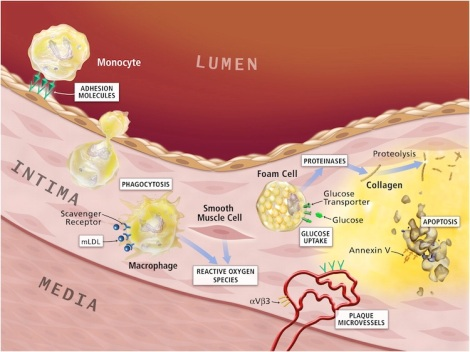 Formation of the Atherosclerotic Plaque
