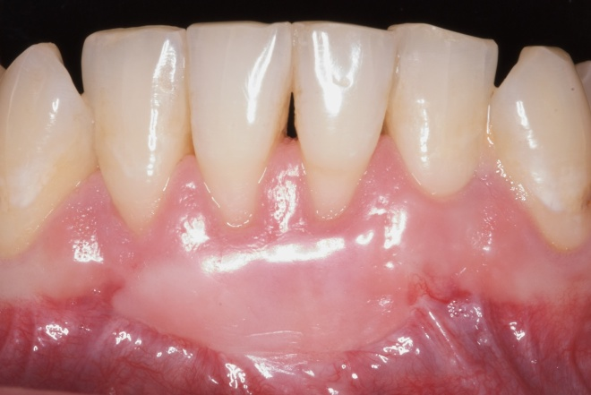 Free Gingival Graft Before And After Loveperio