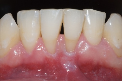 free gingival graft houston tx