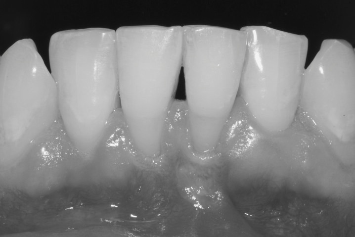 How to Increase Keratinized Tissue with Free Gingival Graft (1/6)