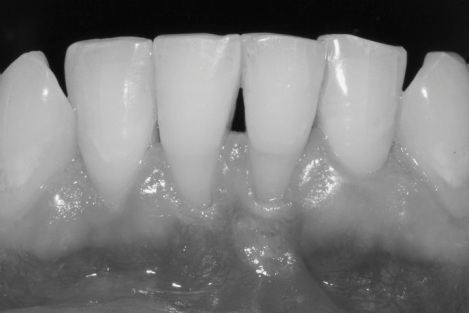 free gingival graft before