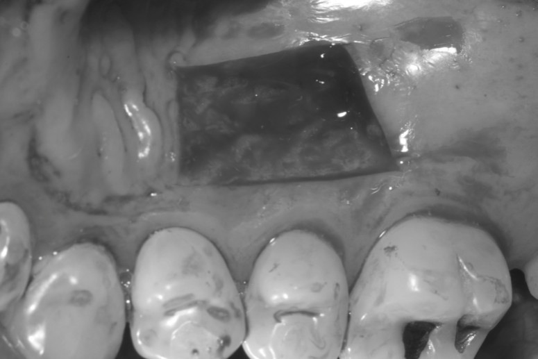 How to Increase Keratinized Tissue with Free Gingival Graft (3/6)
