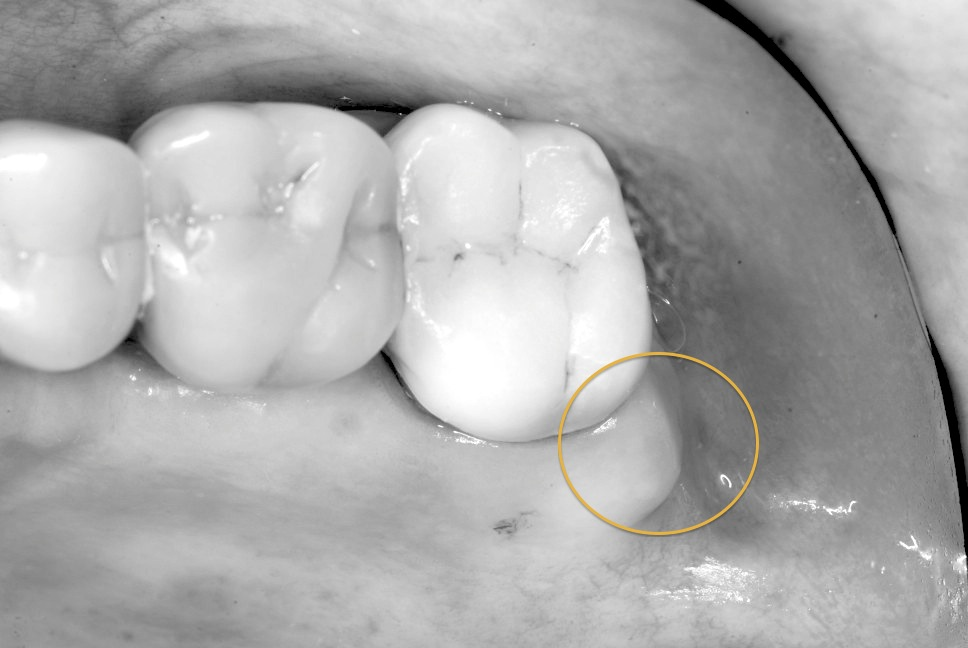 How to Increase Keratinized Tissue with Free Gingival Graft (5/6)