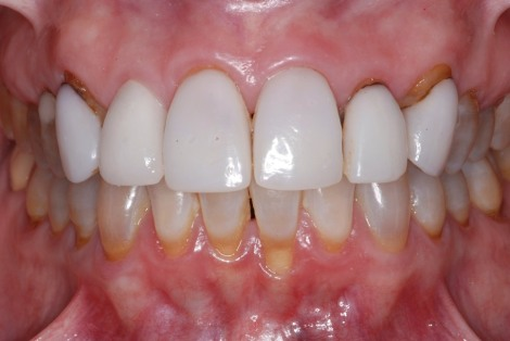 recession-coverage-veneers-before