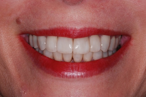 recession-coverage-veneers-houston-tx