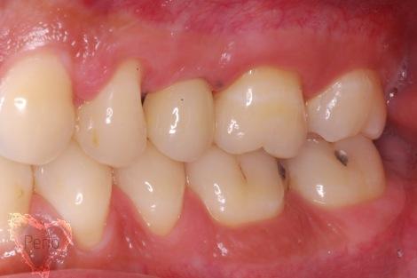dental implants sinus lift houston tx after