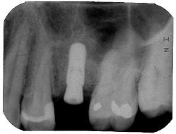 dental implants sinus lift houston tx