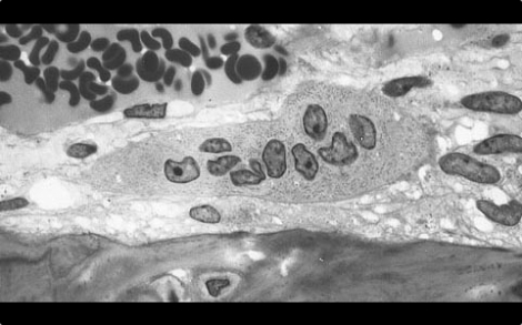 Osteoclast