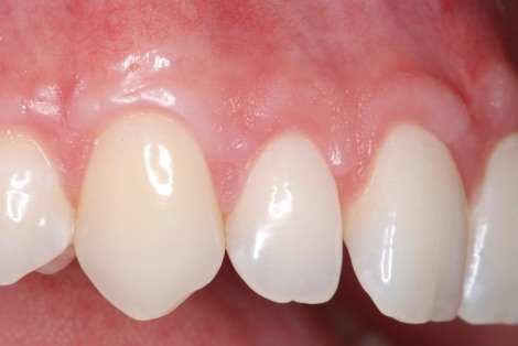 Gum Graft Houston TX