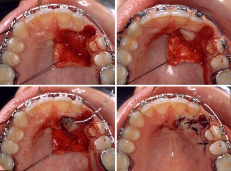 canine exposure palatal approach