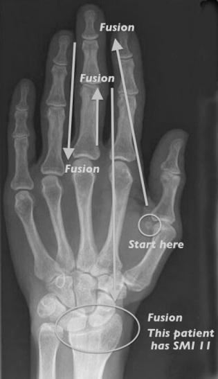 Hand-wrist radiograph of adult