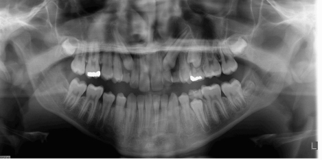Panoramic Radiograph Showing Maxillary Impacted Canines