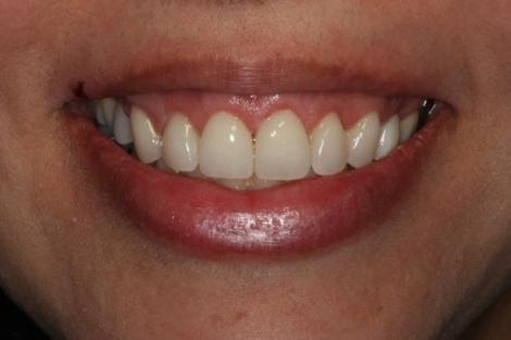 gummy smile houston tx