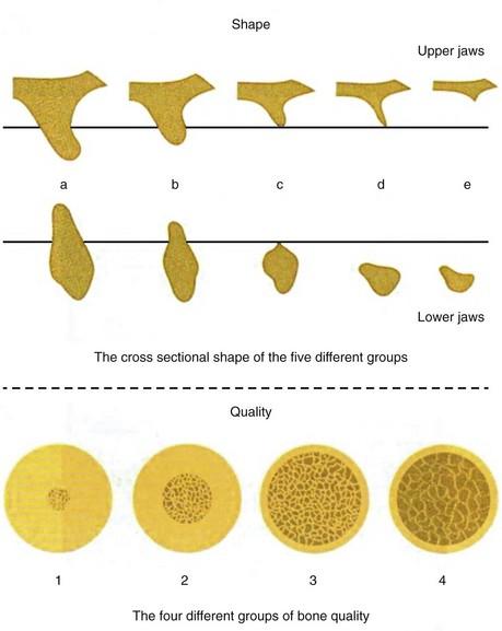 Lekholm & Zarb Bone Classification 1985