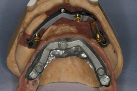 Implant-supported complete denture bar side