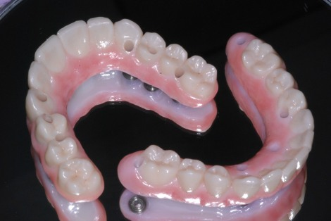 All-ceramic implant bridge