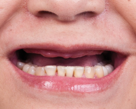 Smile line of an edentulous patient